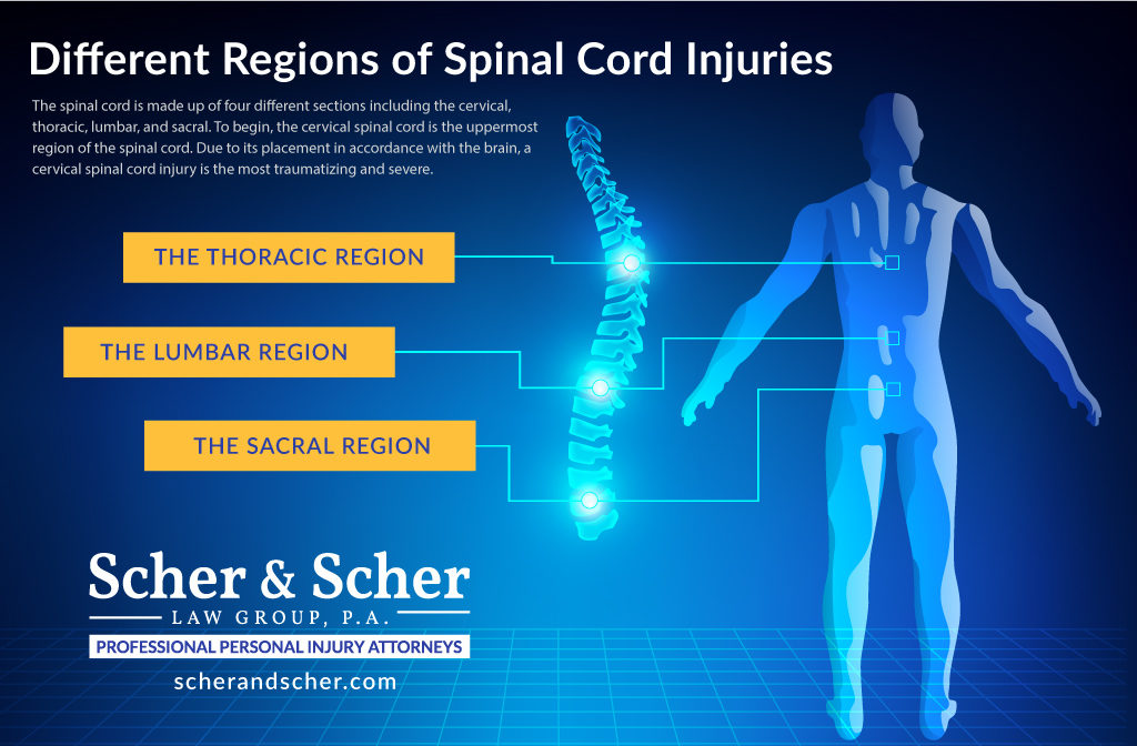 Back and Spinal Cord Injury Hollywood FL lawyers, Chart with Different Regions of Spinal Cord Injuries