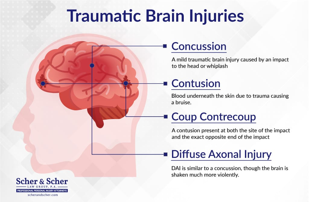 Traumatic Brain and Head Injury Lawyers Hollywood FL, Different Types of Brain Injuries